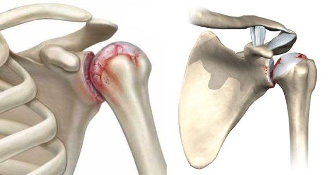 Olaliigese artroosi ilmnemine