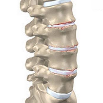 Osteokondroos meditsiiniline osteokondroos