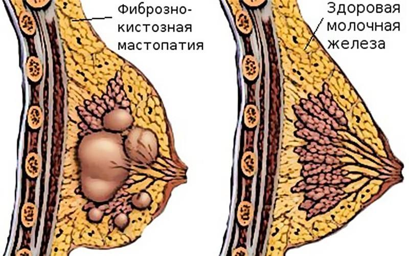 Valus liigestega inimeste kattetoimetamises Mazi valu lihased ja liigesed