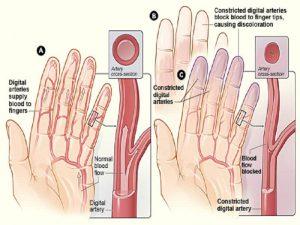 Slap valu STI-ga Infrapunakiirega liigeste tootlemine