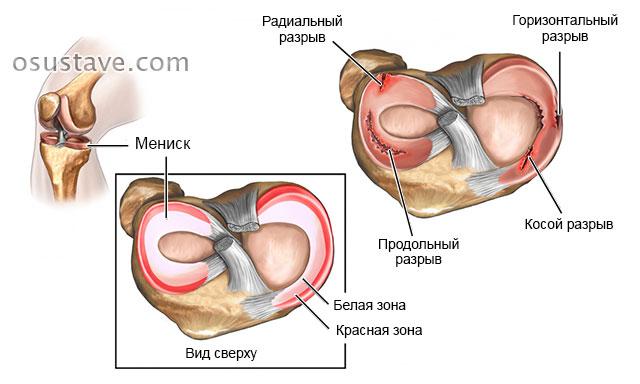 Valu kuunarnuki liigese pohjused