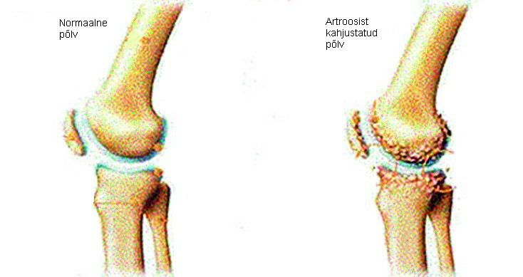 Poletik liigeste ravi ajal artroosi Jala-ravi dislokatsioon