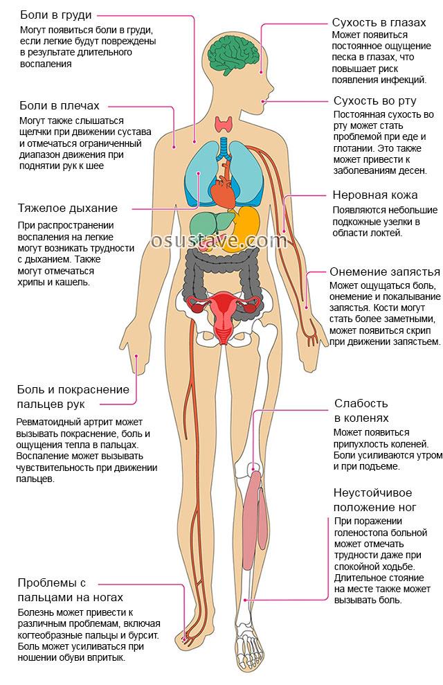 Artroosi tuvirakud Retsept kefiiri liigeste raviks
