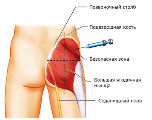 Preparaadid valu leevendamiseks Liigeste artroosi ravi