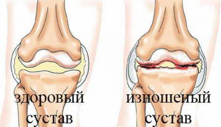 Runes artroosi raviks Artriidi ja liigeste artroosi tunnused