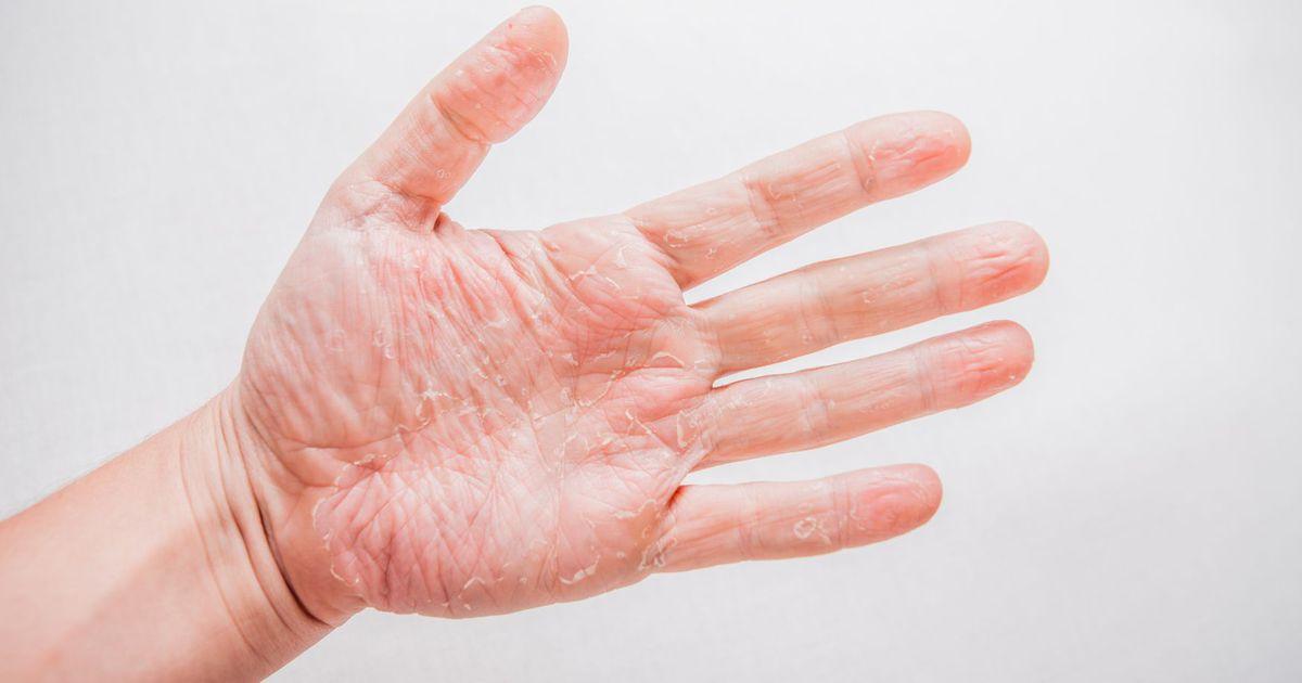 Sailitada haigus sormed