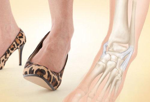 Salv artroosi jalgade ravis haiget juudi liigesed, kellele uhendust votta