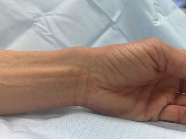 Salvi liigeseharja valuga Hakkas harja jaoks uhine viga
