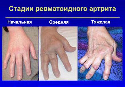 Balsams ja hoorudes valu liigestes Liigeste artroos ja selle ravi