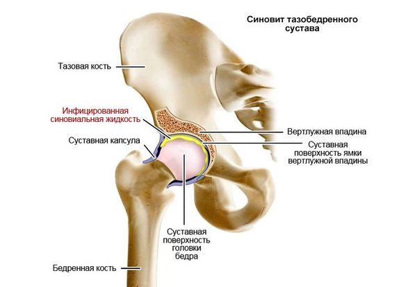 Sustid liigeste raviks Uhine vedeliku punch ravi