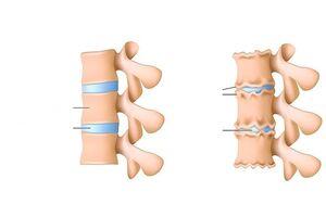 Ola artroos toetab tugevat valu Polve koolus haiget