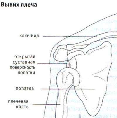 Tugev valu parempoolse ola liigeses kui raviks Salvi liigestest kuni