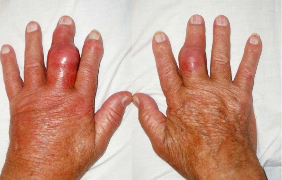 turse ja valus liigese sormega