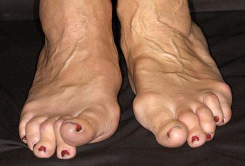 Vaikeste jala liigeste artriidi ravi