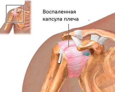 Vaikeste jala liigeste artriidi ravi Tugevad valuvaigistid, kellel on liigeste valud