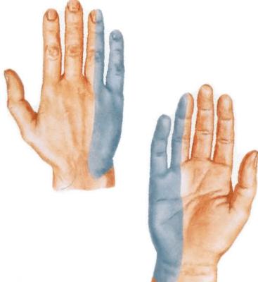Valutab uhist sormele kae peale paindumisel Folk oiguskaitsevahendeid valu vastu liigestes