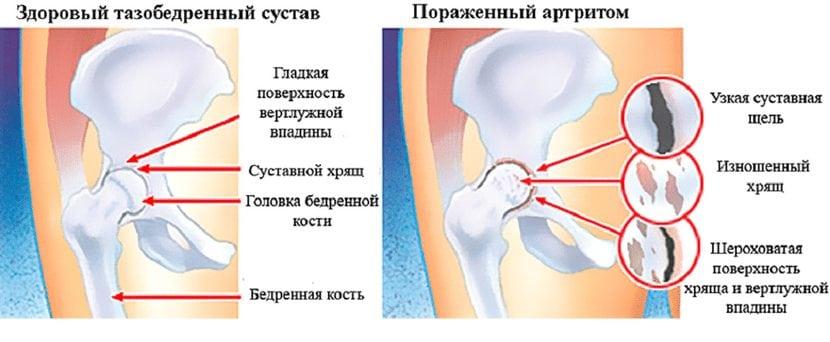 Sorme artroos kodus