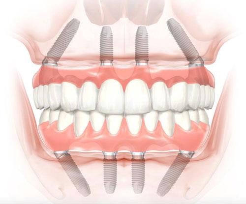 valus luud hambad