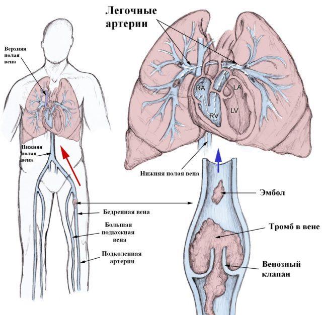 Mis salvid aitavad osteokondroosi Artriidi kate valjavool