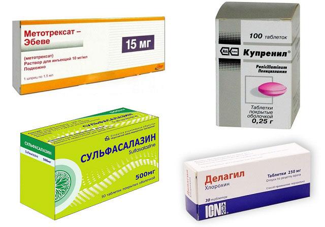 Vitamiinid artriidi sormedes Arthroosi liigeste pohjus