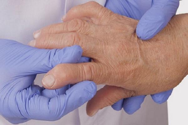 Hoidke liigeste harja vasak kasi Valu ja turse sorme liigeses