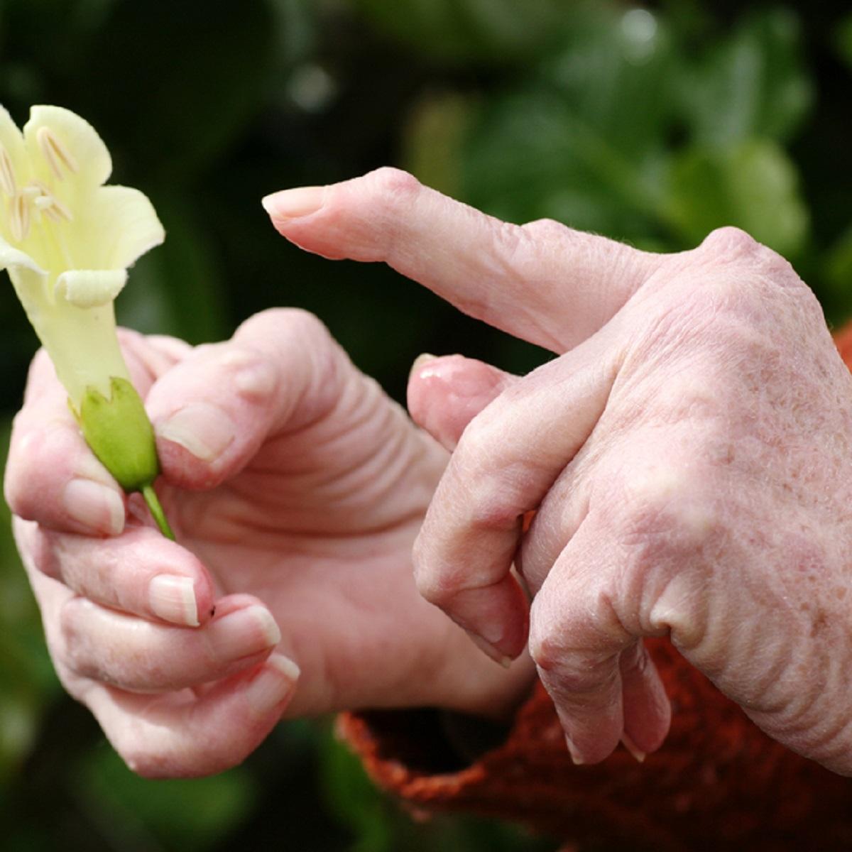 Artroosi ja artriidi sormed
