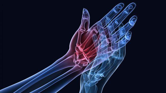 Valud sormede liigestes valu