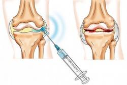 Mida niisutada liigesed artroosi ajal
