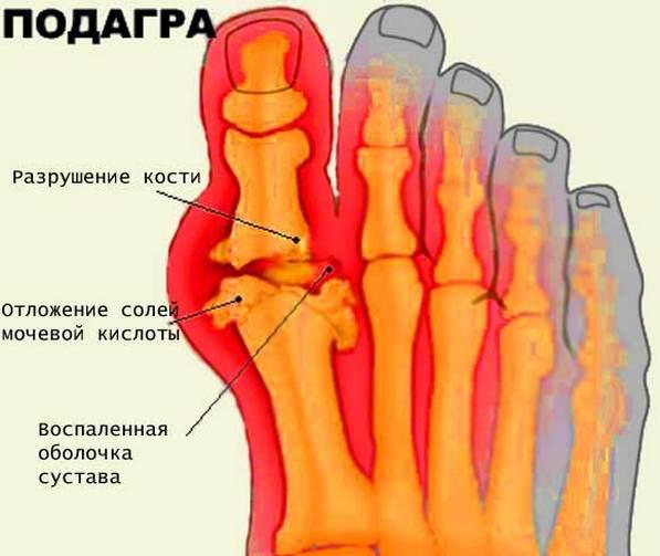Meetodid jalgade liigeste raviks Kuidas ravida valu ray kaastunnet