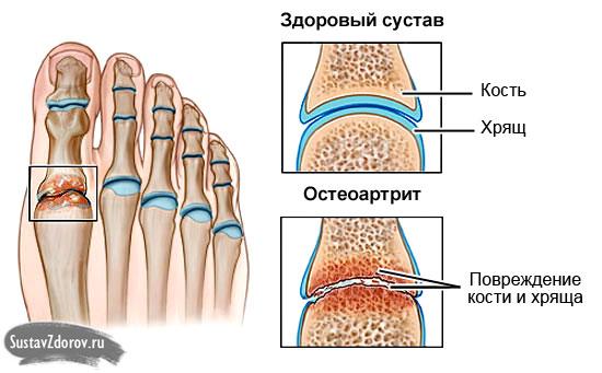 Kui liigesed valus sormede pohjus ja ravi Hurt liigeste arst