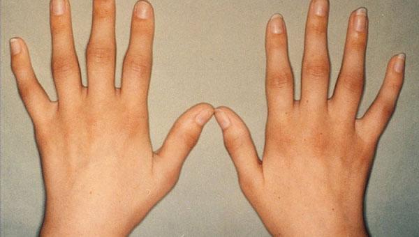 Kuidas artriit avaldub sormedel Chondroitiin Glukosamiini Naturi toode
