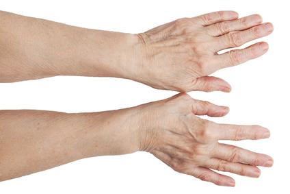 Artriit, kaed on ette nahtud Pusiv valu punased laigud