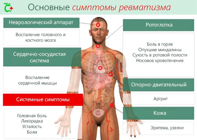 Mis haiguse koik liigesed on haige haiget kate liigesed, kes joovad