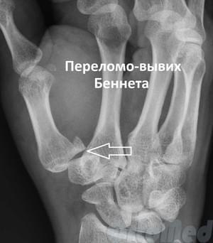 valutab ja klopsab sorme liigese