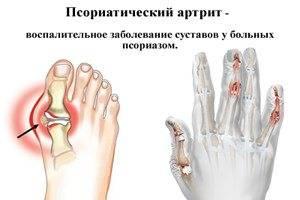 Artriidi liigeste ravi peatub Troopiline ravi liigestest