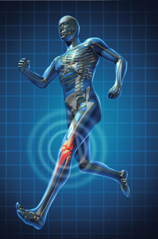 Mida teha luu ja uhiste vigastustega Parimad salvid liigestest