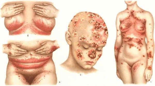 Kohreliideste haigus