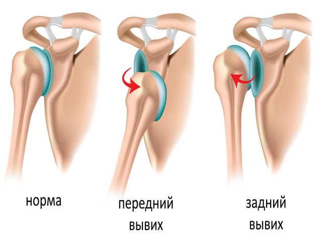 Harjade liigeste vigastused
