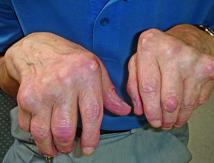 Vasaku kuunarnuki liigese artroos