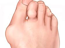 valu jalgade jalamini kui ravida