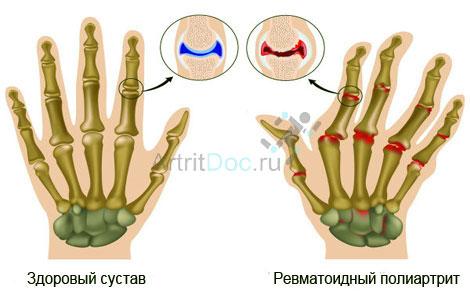 Artriidi liigeste ravi peatub Salv liigestele b