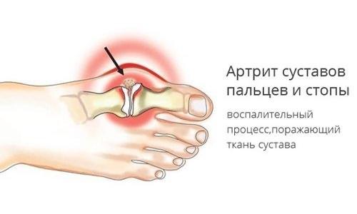Kui liigesed valus sormede pohjus ja ravi Kulvihaiguste ravi