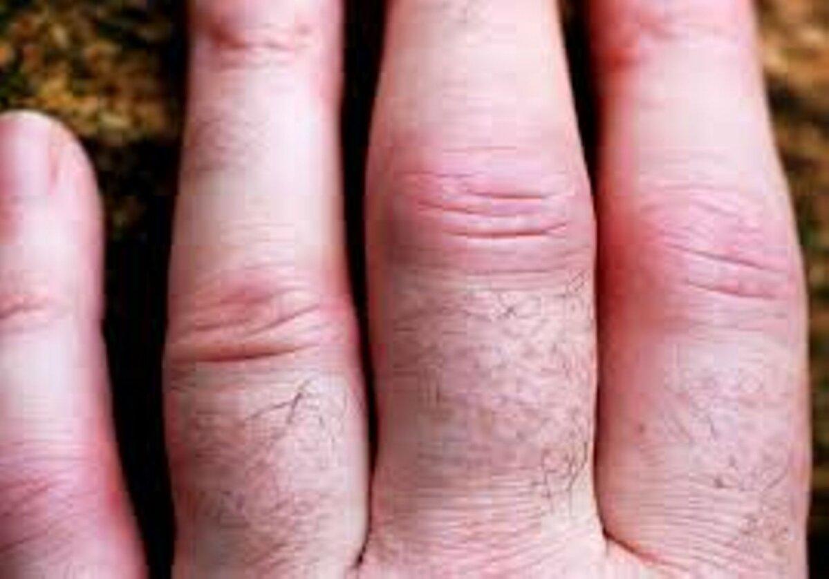 Kuulab sormede haigete liigeseid