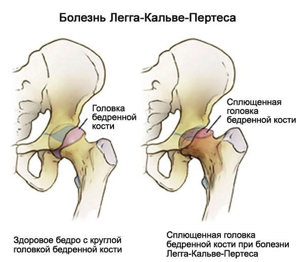 Kuunarnuki liigeste haigus Bursit