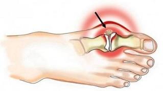 Olaliigese artroosi margid