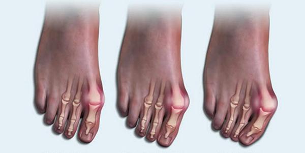 Jalad paisub artriidi liigeses Artriit sormede kasitsi ravi