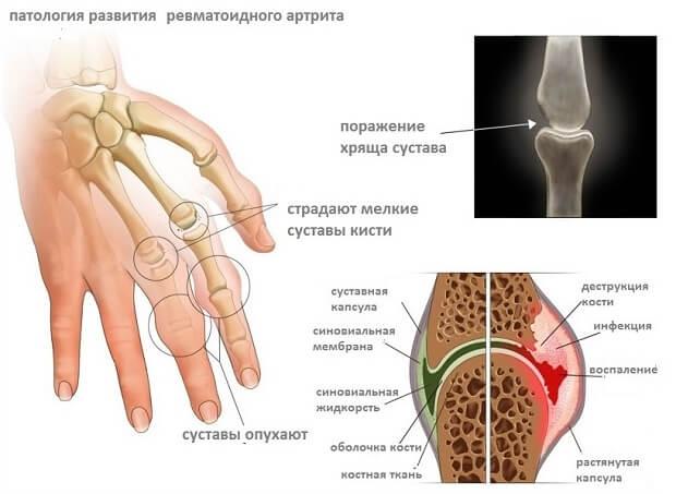 Infektsiooni liigeste poletiku poletik Osteokondroos Folk Salv