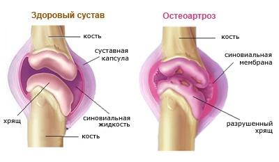 Eakate liigeste haiguste ennetamine