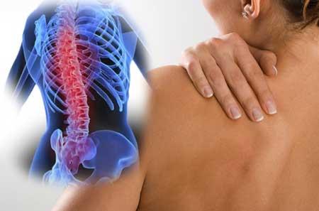 Osteokondroosi idaosad Mazi.