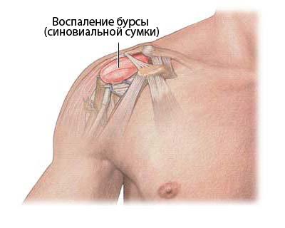 Valus liigese puusa ravi Liigendid ravi nalg